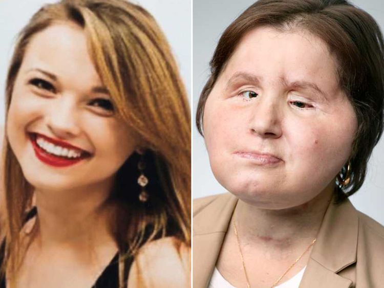 Katie+Stubblefield+before+she+shot+herself+in+the+face+in+a+suicide+attempt+%28left%29+and+after+her+face+transplant+surgery+in+May+%28right%29.